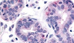 HUNK Antibody (PA5-33856)