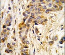 IARS2 Antibody (PA5-14991)