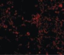 IL21R Antibody (PA5-19982)