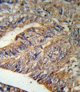 IL1RA Antibody (PA5-13428)