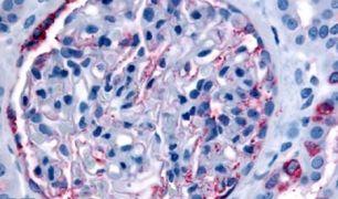 INPP5J Antibody (PA5-32875)