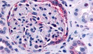 INPP5J Antibody (PA5-33858)