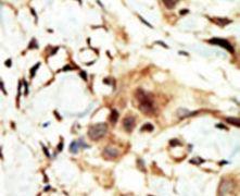 INSR Antibody (PA5-14687)