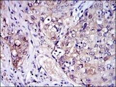 IRAK4 Antibody (MA5-15883)