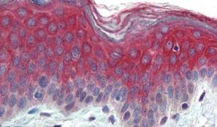 ITGA3 Antibody (PA5-32881)