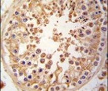 JLP Antibody (PA5-14165)