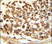 JMJD2B Antibody (PA5-26399)