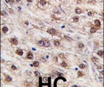 JMJD4 Antibody (PA5-11152)