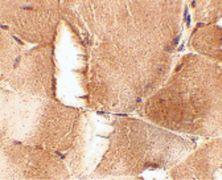 JPH1 Antibody (PA5-20640)