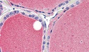 KCNA3 Antibody (PA5-33863)