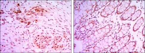JMJD2A Antibody (MA5-15678)