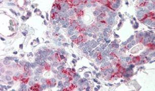 KIAA1324 Antibody (PA5-32894)