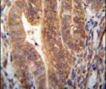 KIAA1644 Antibody (PA5-23931)