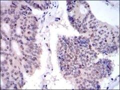 KID Antibody (MA5-15912)