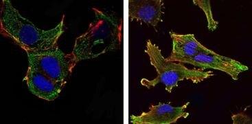 KLHL13 Antibody (MA5-15658)