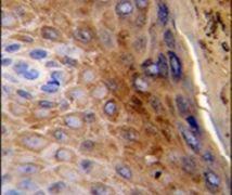 Cytokeratin 10 Antibody (PA5-13663)