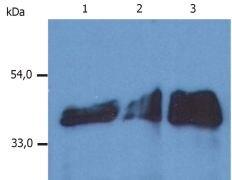 Cytokeratin 18 Antibody (MA1-19047)