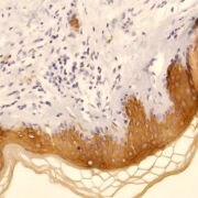 Cytokeratin 10 Antibody (PA5-32459)