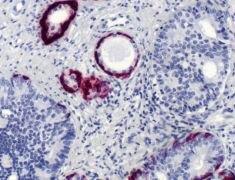 Cytokeratin 5 Antibody (MA5-16372)