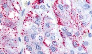LGR7 Antibody (PA5-34170)
