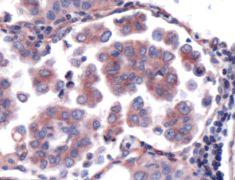 LIMD1 Antibody (PA5-32475)
