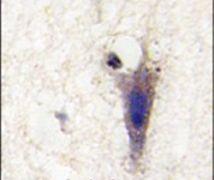LINGO1 Antibody (PA5-14159)