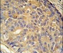 LOH12CR1 Antibody (PA5-25705)