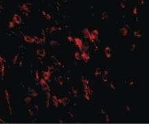 LRFN1 Antibody (PA5-20698)