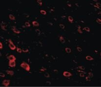LRFN3 Antibody (PA5-20706)