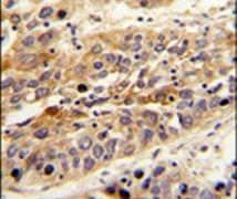 LRG1 Antibody (PA5-13664)