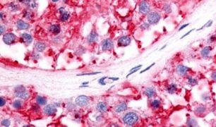 NR5A2 Antibody (PA5-34017)