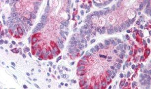 LRRN4 Antibody (PA5-32906)