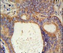 LYSMD1 Antibody (PA5-25648)
