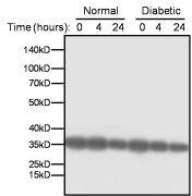 LDHA Antibody (PA5-23036)