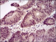 Lplunc1 Antibody (MA5-17124)