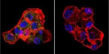 CETP Antibody (MA1-050)