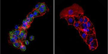 Cytohesin 1 Antibody (MA1-060)
