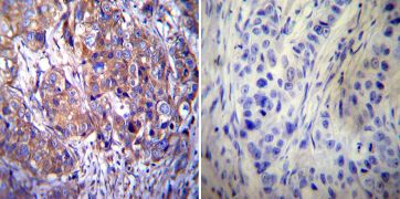 Clathrin Heavy Chain Antibody (MA1-065)