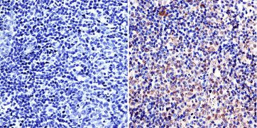 LAP1 Antibody (MA1-074)