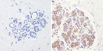 eIF2b gamma Antibody (MA1-078)