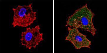 eIF2a Antibody (MA1-079)