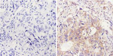 FOXA1 Antibody (MA1-091)