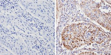 SOD2 Antibody (MA1-106)
