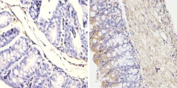 FKBP4 Antibody (MA1-111)