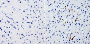 HMOX1 Antibody (MA1-112)