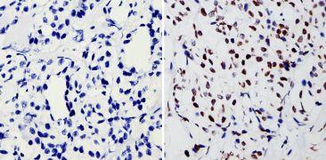 BCR-ABL Antibody (MA1-153)
