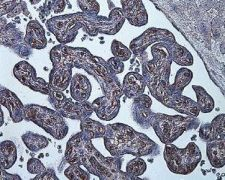 HIF1A Antibody (MA1-16518)