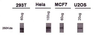 BRCA1 Antibody (MA1-16618)