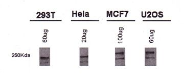BRCA1 Antibody (MA1-16619)