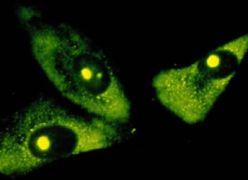 rRNA Antibody (MA1-16628)